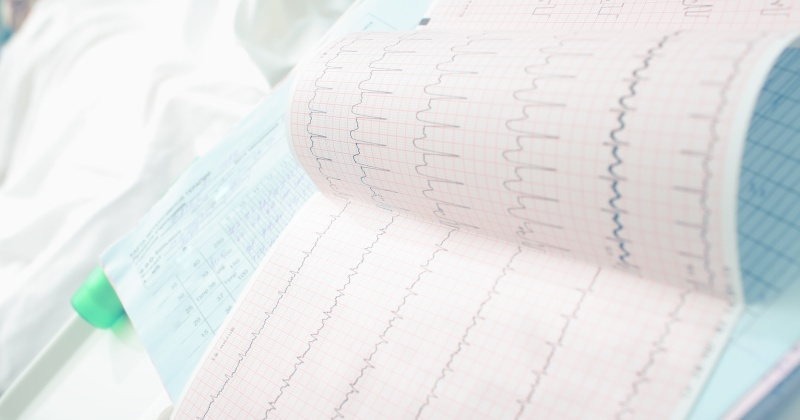 Analyzing ECG of patient in the ward