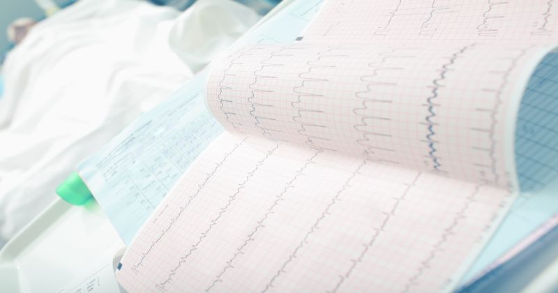 Analyzing ECG of patient in the hospital ward
